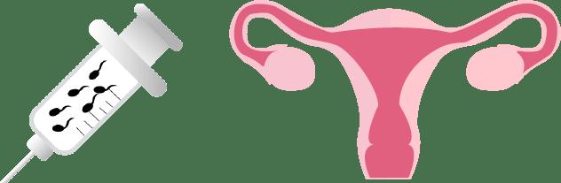tipos de inseminación artificial